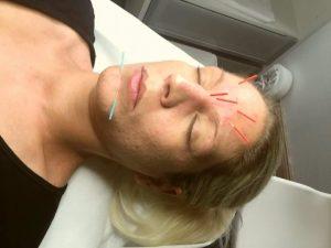 Kosmetisk akupunktur er effektiv mod rynker og problemhud. Godt alternetiv til botox