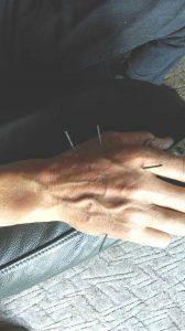 Bliv smertefri med akupunktur