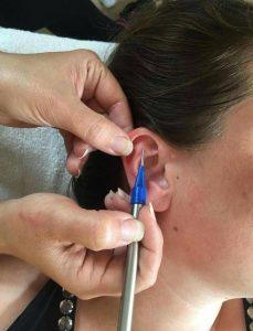 Behandling af smerter med øreakupunktur - forundersøgelse