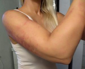 Behandling for smerte i arm og albue