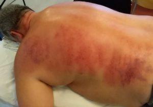 Rødme i huden efter skrab med Gua Sha