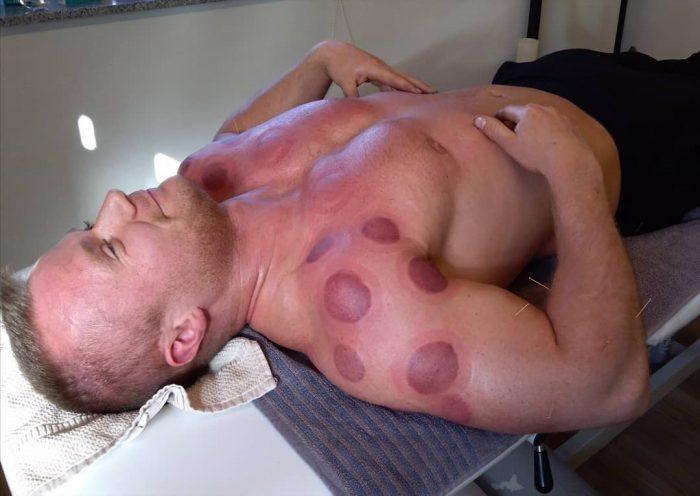 Behandling med cupping af bodybuildere og atleter